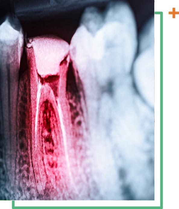 root canal vaughan